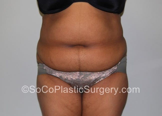 Tummy Tuck Gallery - Patient 8286184 - Image 1