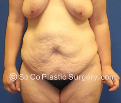 Tummy Tuck Gallery - Patient 8286186 - Image 1