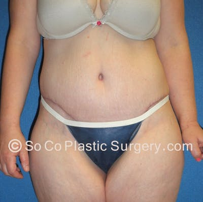 Tummy Tuck Gallery - Patient 8286186 - Image 2