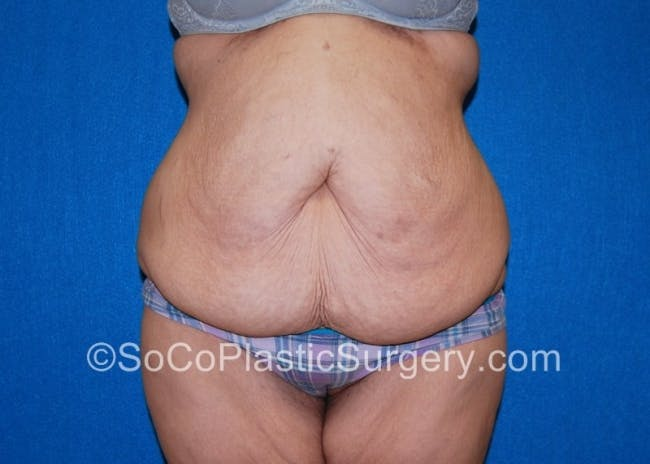 Tummy Tuck Gallery - Patient 8286187 - Image 1