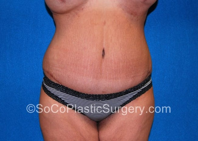 Tummy Tuck Gallery - Patient 8286187 - Image 2