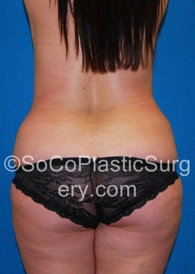 Tummy Tuck Gallery - Patient 8286188 - Image 1
