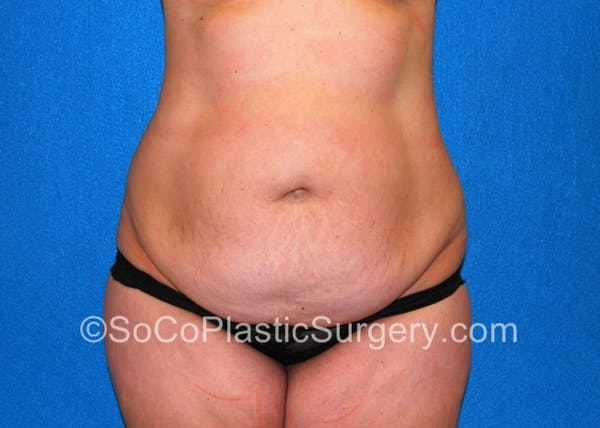 Tummy Tuck Gallery - Patient 8286188 - Image 3
