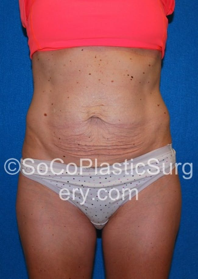 Tummy Tuck Gallery - Patient 8286190 - Image 1