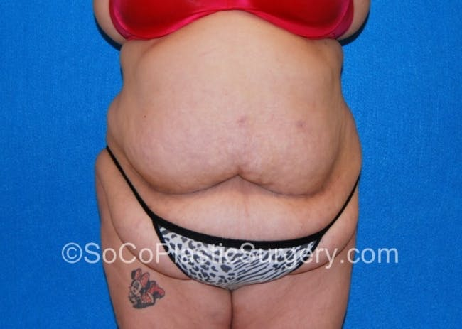 Tummy Tuck Gallery - Patient 8286191 - Image 1