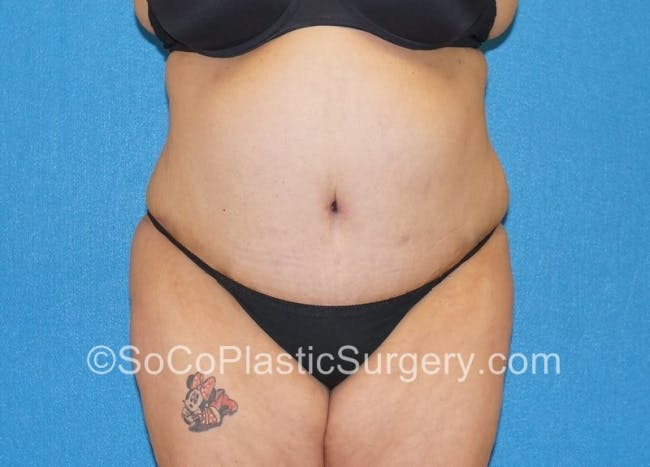 Tummy Tuck Gallery - Patient 8286191 - Image 2
