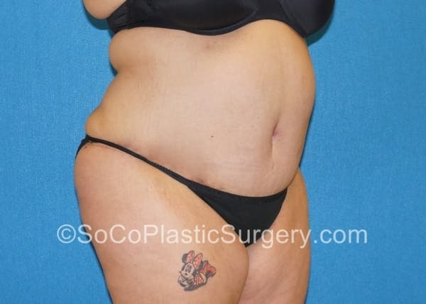 Tummy Tuck Gallery - Patient 8286191 - Image 4