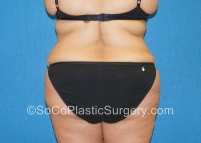 Tummy Tuck Gallery - Patient 8286191 - Image 8
