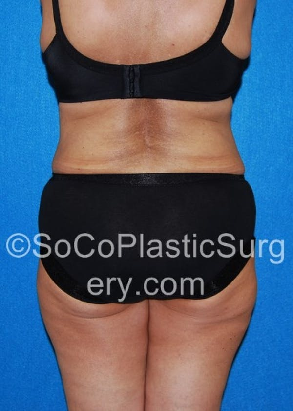 Tummy Tuck Gallery - Patient 8286192 - Image 8