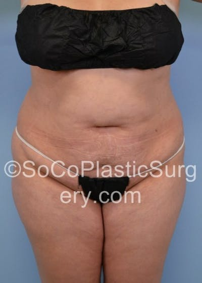 Tummy Tuck Gallery - Patient 8286196 - Image 1