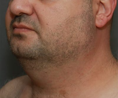 Double Chin (Submental Liposuction) Gallery - Patient 14777981 - Image 1