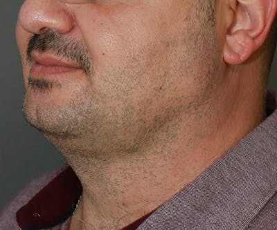 Double Chin (Submental Liposuction) Gallery - Patient 14777981 - Image 2