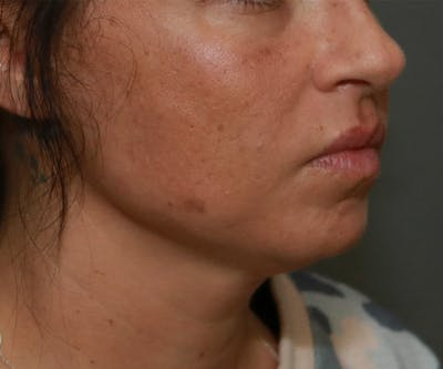 Double Chin (Submental Liposuction) Gallery - Patient 14777982 - Image 1