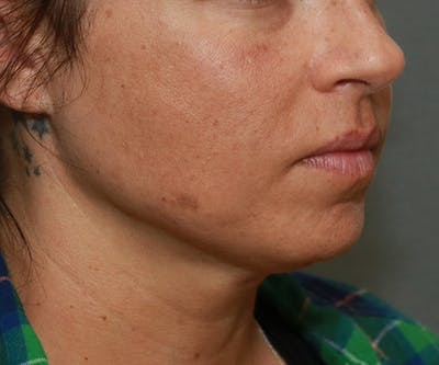 Double Chin (Submental Liposuction) Gallery - Patient 14777982 - Image 2
