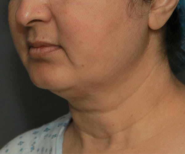 Double Chin (Submental Liposuction) Gallery - Patient 14777983 - Image 1