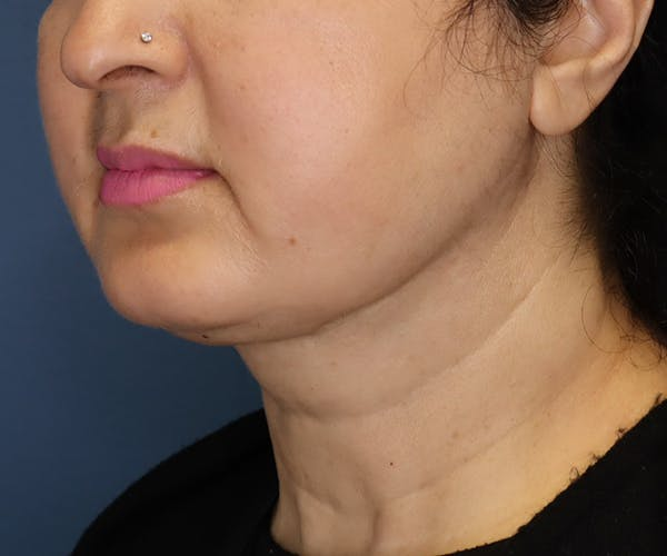 Double Chin (Submental Liposuction) Gallery - Patient 14777983 - Image 2