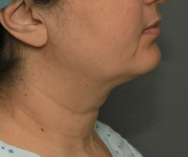Double Chin (Submental Liposuction) Gallery - Patient 14777983 - Image 3