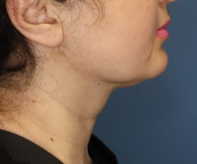 Double Chin (Submental Liposuction) Gallery - Patient 14777983 - Image 4