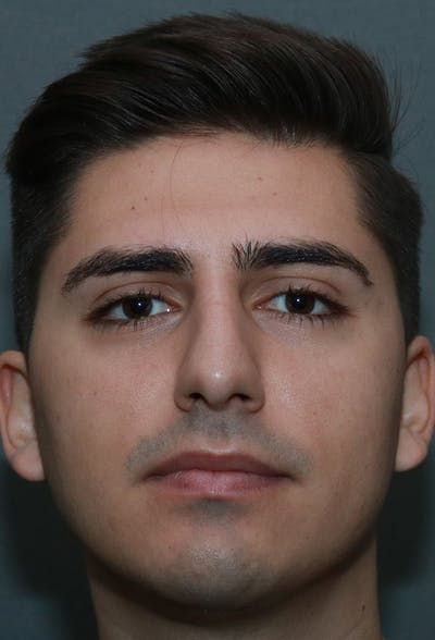 Revision Rhinoplasty Gallery - Patient 15239501 - Image 2
