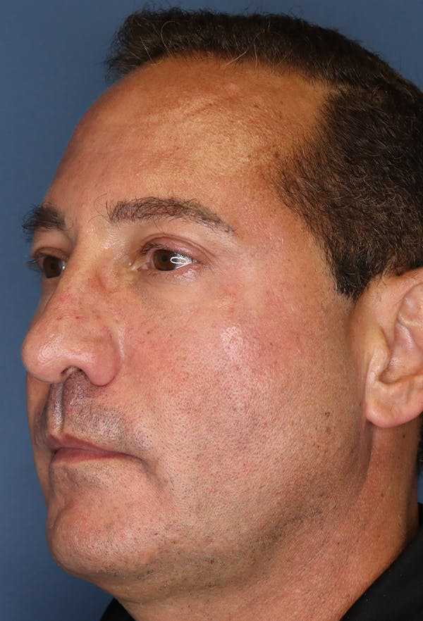 Revision Rhinoplasty Gallery - Patient 18427125 - Image 3