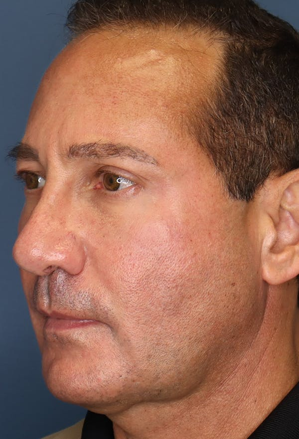 Revision Rhinoplasty Gallery - Patient 18427125 - Image 4