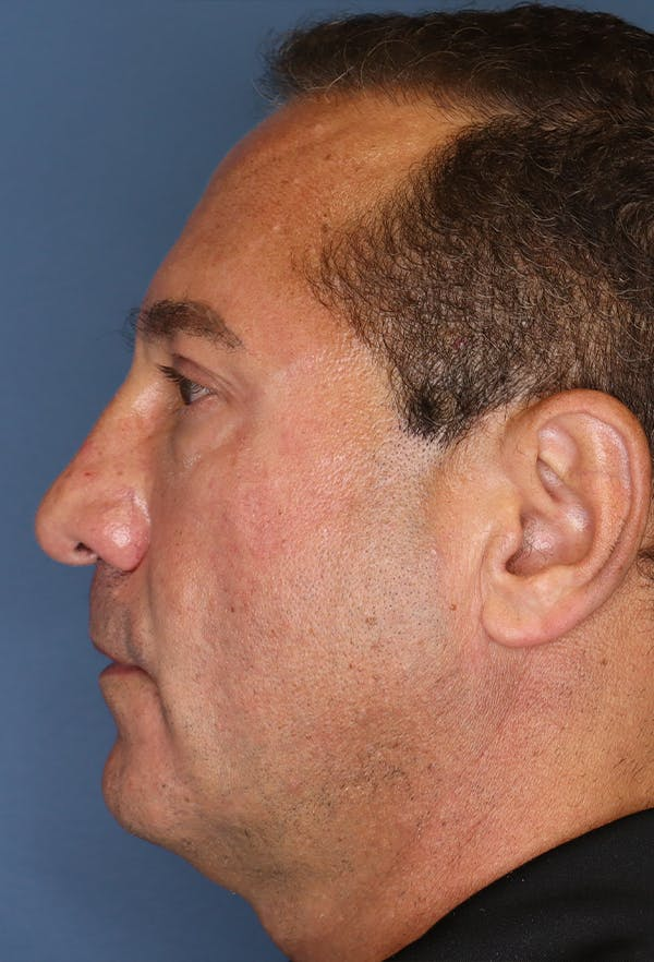 Revision Rhinoplasty Gallery - Patient 18427125 - Image 5