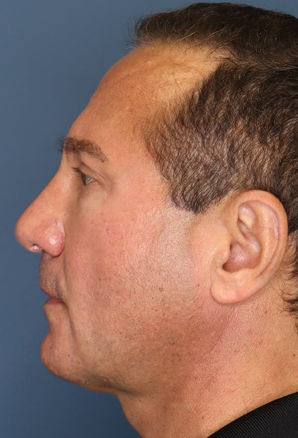 Revision Rhinoplasty Gallery - Patient 18427125 - Image 6