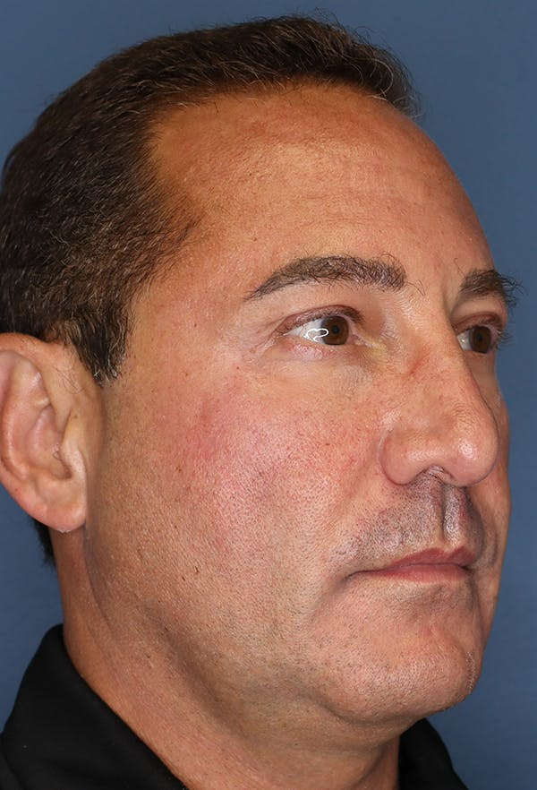 Revision Rhinoplasty Gallery - Patient 18427125 - Image 7