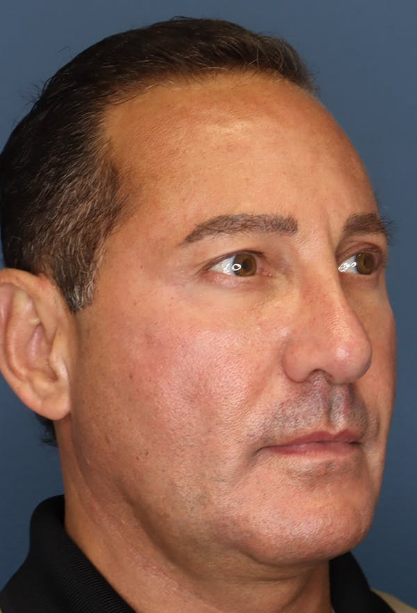 Revision Rhinoplasty Gallery - Patient 18427125 - Image 8