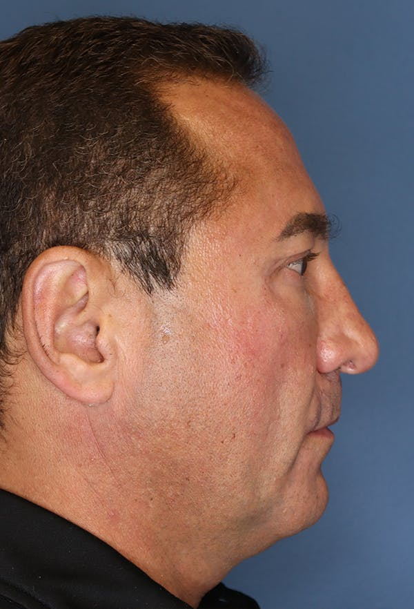 Revision Rhinoplasty Gallery - Patient 18427125 - Image 9
