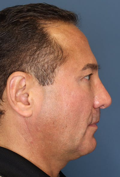 Revision Rhinoplasty Gallery - Patient 18427125 - Image 10