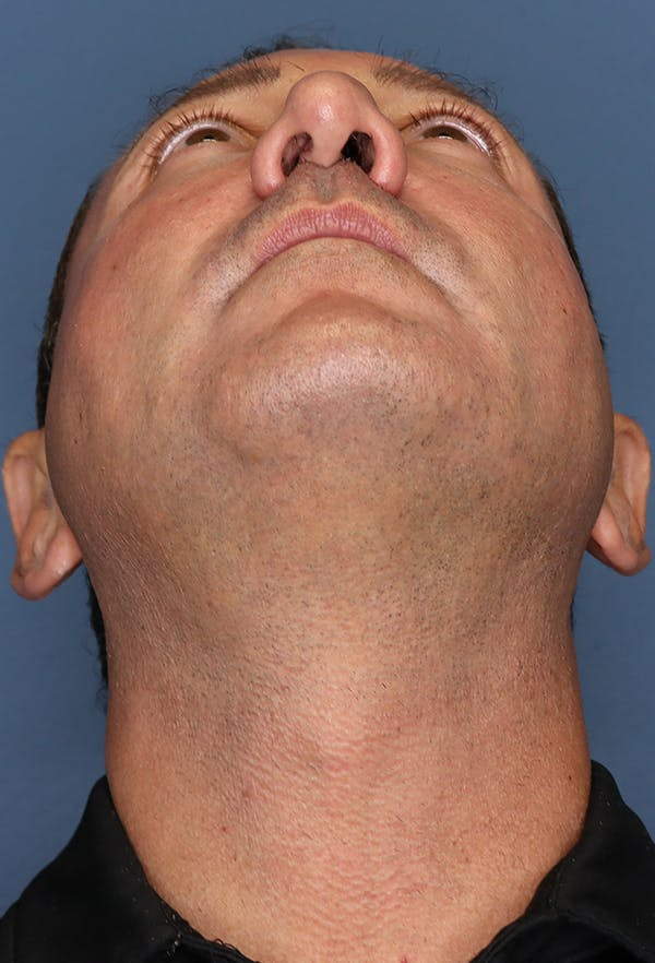 Revision Rhinoplasty Gallery - Patient 18427125 - Image 11