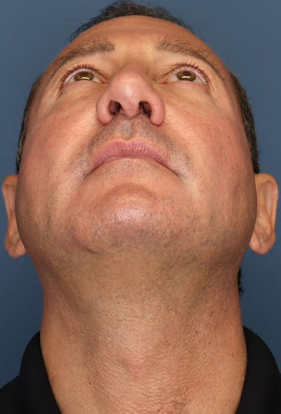 Revision Rhinoplasty Gallery - Patient 18427125 - Image 12