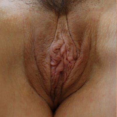 Labiaplasty Gallery - Patient 19813208 - Image 1