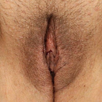 Labiaplasty Gallery - Patient 19813208 - Image 2