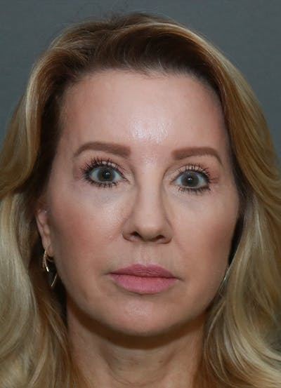 Facelift Gallery - Patient 21364537 - Image 2