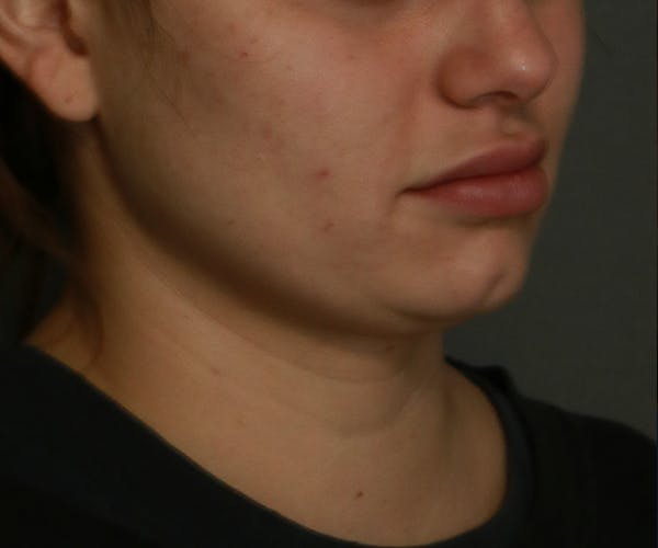 Double Chin (Submental Liposuction) Gallery - Patient 25775850 - Image 1