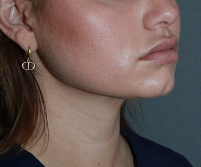 Double Chin (Submental Liposuction) Gallery - Patient 25775850 - Image 2