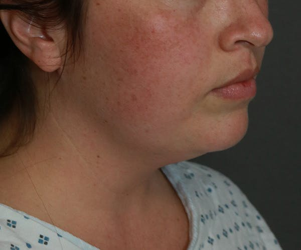 Double Chin (Submental Liposuction) Gallery - Patient 25775851 - Image 1