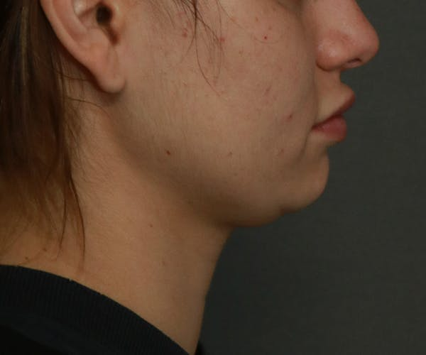 Double Chin (Submental Liposuction) Gallery - Patient 25775850 - Image 3