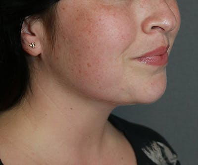 Double Chin (Submental Liposuction) Gallery - Patient 25775851 - Image 2