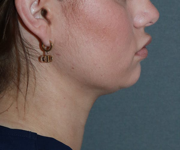 Double Chin (Submental Liposuction) Gallery - Patient 25775850 - Image 4