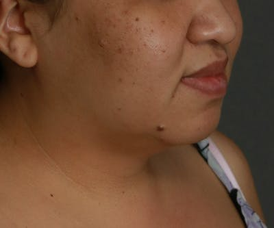 Double Chin (Submental Liposuction) Gallery - Patient 25775852 - Image 1