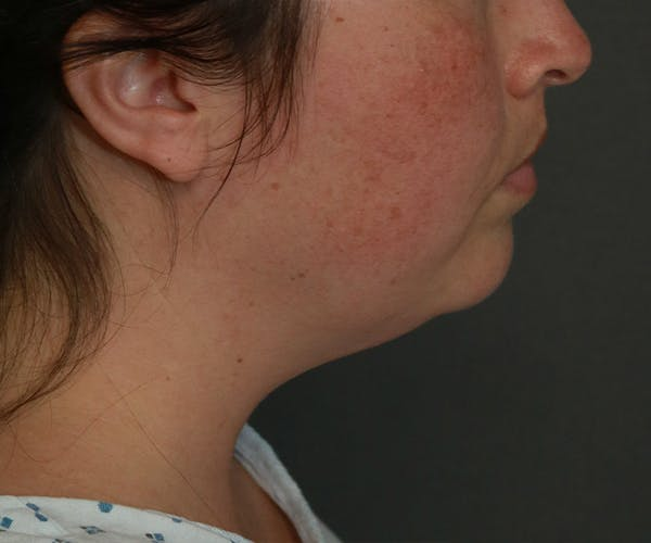 Double Chin (Submental Liposuction) Gallery - Patient 25775851 - Image 3