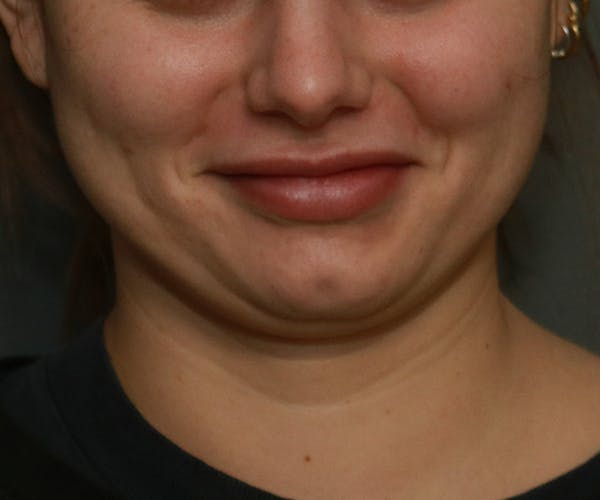 Double Chin (Submental Liposuction) Gallery - Patient 25775850 - Image 5