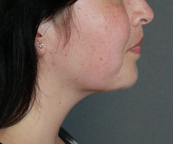 Double Chin (Submental Liposuction) Gallery - Patient 25775851 - Image 4