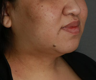 Double Chin (Submental Liposuction) Gallery - Patient 25775852 - Image 2