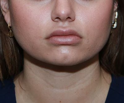 Double Chin (Submental Liposuction) Gallery - Patient 25775850 - Image 6