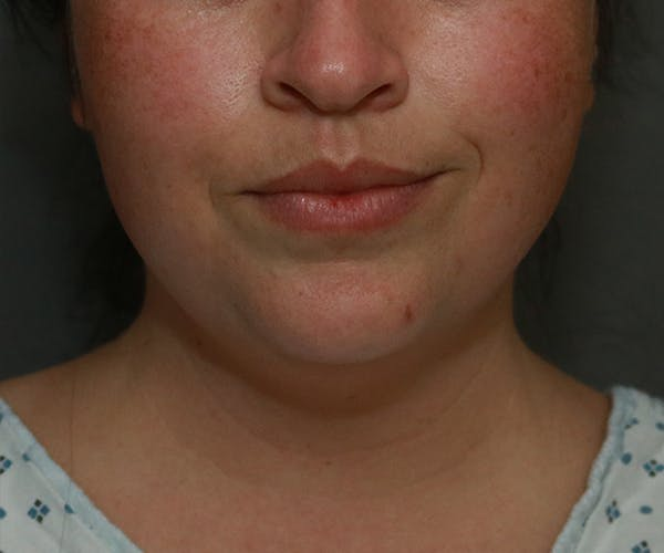 Double Chin (Submental Liposuction) Gallery - Patient 25775851 - Image 5