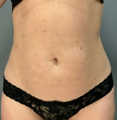 Microcannula Liposuction Gallery - Patient 26868844 - Image 2